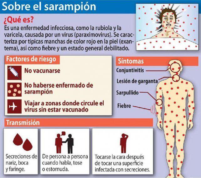 Santa Fe en alerta por un caso de sarampión autóctono en el país después de 18 años