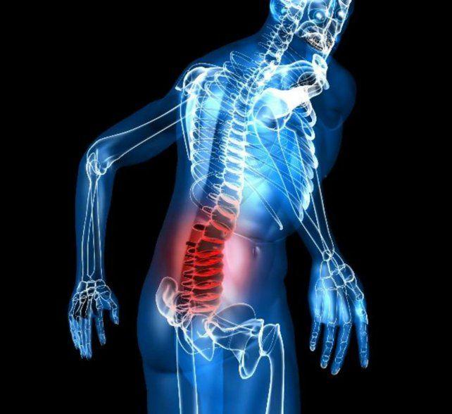 Espondritis anquilosante, una enfermedad de difícil diagnóstico
