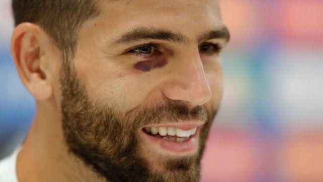 La broma de Fazio para explicar un hematoma en el ojo