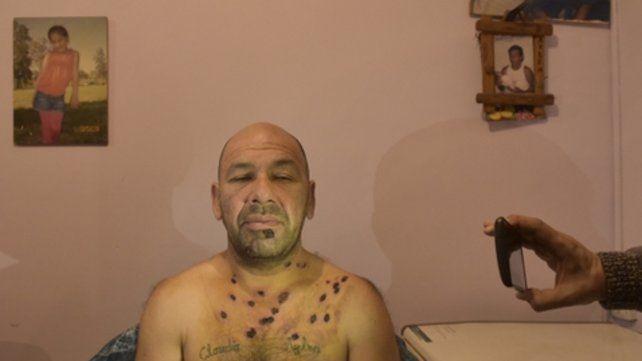 Dolorido. Así estaba ayer a la tarde Gustavo, cuatro días después de ser atacado injustamente por la policía. <br>