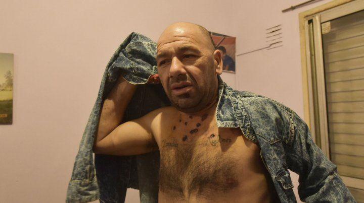 Herido. Gustavo Benítez fue alcanzado por perdigones de un escopetazo.