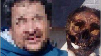 Polémica en Sunchales por sacarse una foto junto a un cráneo
