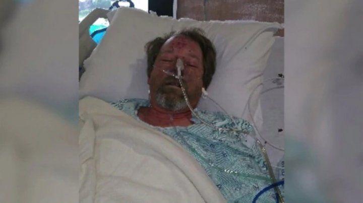Greg Manteufel perdió parte de sus piernas y los antebrazos por una rara infección que le provocó la saliva de su perro.
