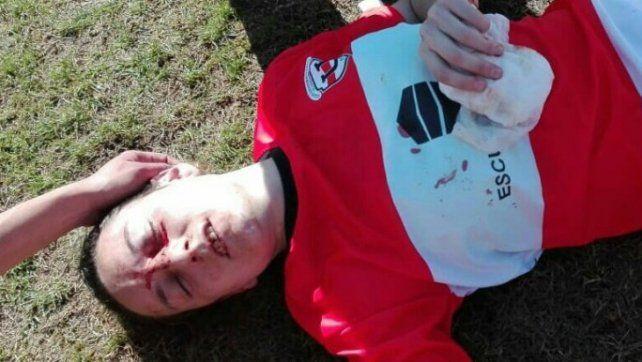 Repudiable. Un partido de fútbol femenino de la liga de Córdoba terminó con una batalla campal.