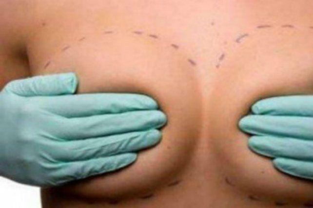 Los trasplantes mamarios siguen liderando las preferencias.