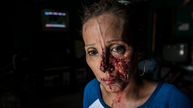 Mirada. Una mujer herida por la represión de policías y parapoliciales.