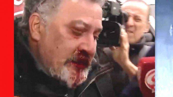 El hombre de 47 años fue golpeado por los vecinos.