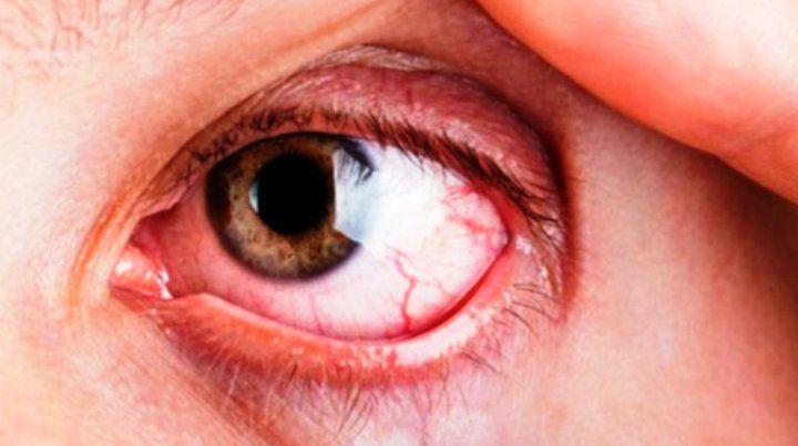 Una consulta oportunaal oftalmólogo puede evitar la ceguera