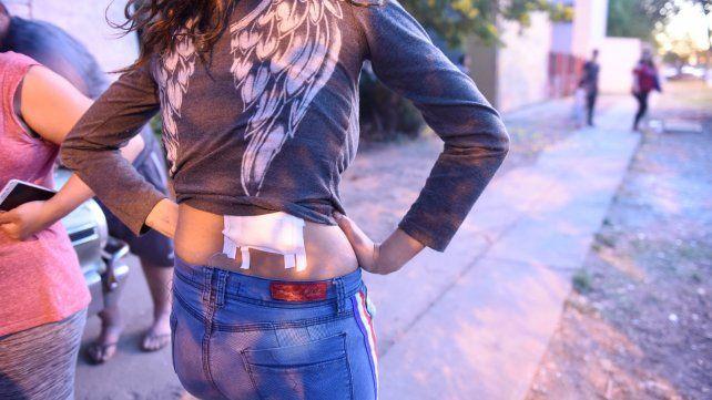 Herida. Entre las personas heridas hay una adolescente fuera de peligro.