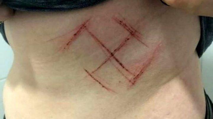 Un ataque homofóbico contra una joven en Porto Alegre