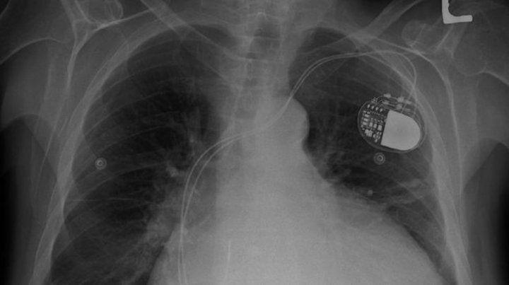 Denuncian un fraude mundial con implantes médicos en millones de pacientes
