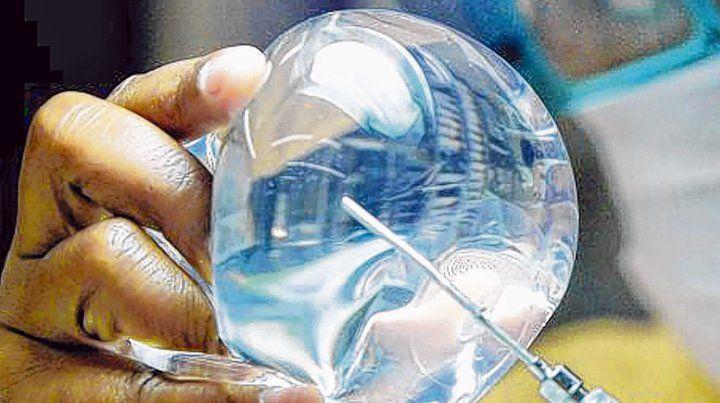 Implantes mamarios. Denuncian que dispositivos con fallas son retirados en un país