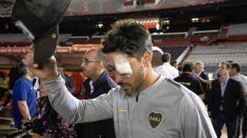 El capitán. Pablo Pérez corría riesgo de infección si jugaba, según los médicos.
