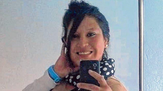 Yanina Dalma Miranda. La mujer sufrió quemaduras en el 45% de su cuerpo