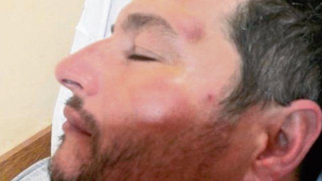 Golpeado. El jefe comunal estuvo internado 24 horas por las lesiones.