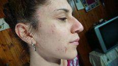 Las marcas en la cara de Nadia no dejan lugar a dudas del ataque que sufrió.