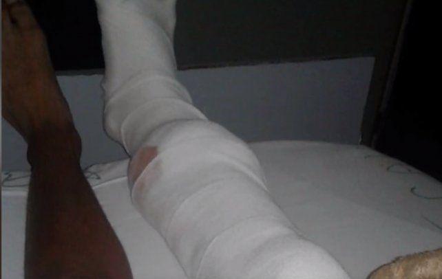 La pierna derecha de Jeremías recibió el impacto de una bala.