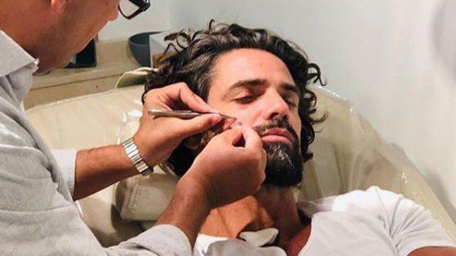 Cómo quedó el rostro de Luciano Castro que se accidentó practicando surf