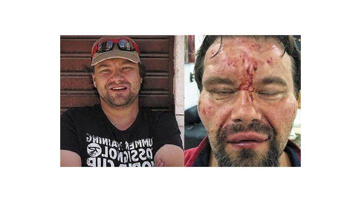 El periodista polaco Tomasz Surdel fue desfigurado a golpes por los agentes de la inteligencia chavista.