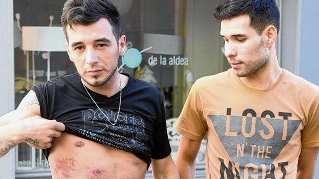 golpeados. Alexis y Nahuel tras hacer la denuncia en Fiscalía.