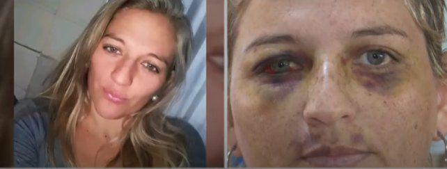 El antes y después. Betiana fue brutalmente golpeada por su expareja.
