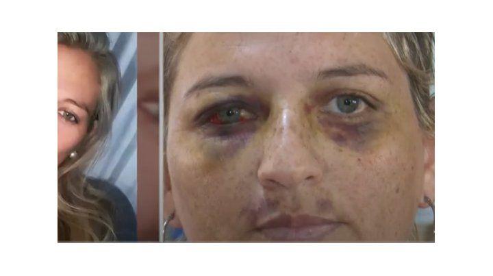 El antes y después. Betiana fue brutalmente golpeada por su expareja. (Foto: captura de TV)