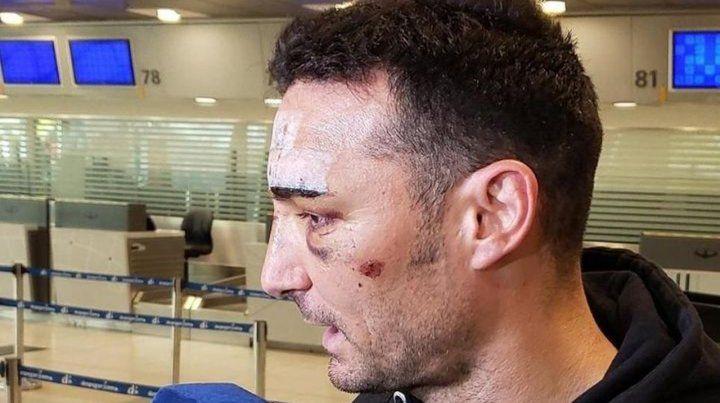 Marcado. El rostro del técnico argentino muestra las secuelas del accidente que sufrió el miércoles en Palma de Mallorca.