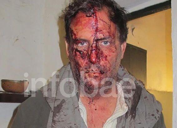 Gonzalo Susini y su mujer fueron golpeados por alrededor de dos horas por los delincuentes. (Foto: Infobae)