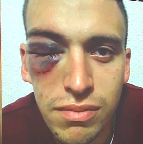 Francisco tiene un edema en la retina y le tendrán que hacer más estudios. Por ahora deberá estar inactivo alrededor de 15 días. (Foto: captura de TV)