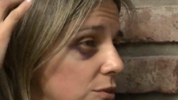 Una mujer fue golpeada brutalmente durante un robo