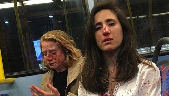 Melanie y su novia fueron golpeadas brutalmente.