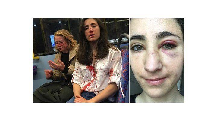 Una azafata uruguaya y su novia fueron golpeadas brutalmente en Londres