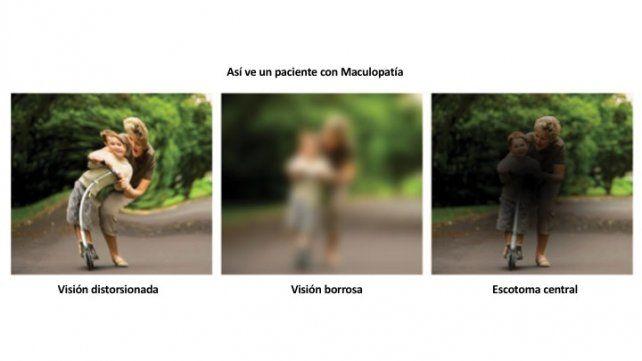 Maculopatía relacionada a la edad