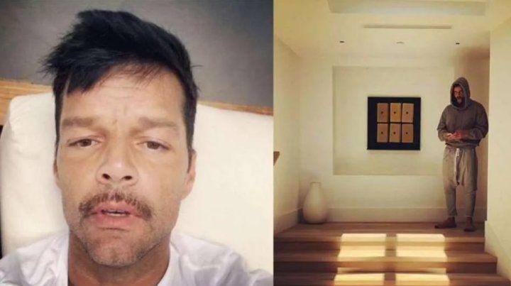 Ricky Martin compartió una foto que llenó de preocupación a sus fans