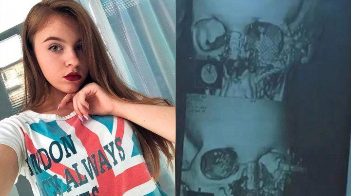 Polina lucha por su vida luego de que se disparara el rifle cuando se iba a sacar una selfie. A la derecha la imagen de la radiografía de su cara. (Fotos: Instagram/Polina Gordik- ICTV)