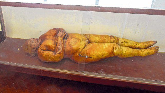 conservación. El cuerpo de la mujer puede verse en el Museo de Ciencias Morfólogicas de la cátedra de anatomía normal.