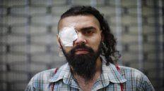 Lesionado. Marcelo Herrera, uno de los manifestantes que sufrió los perdigones policiales.
