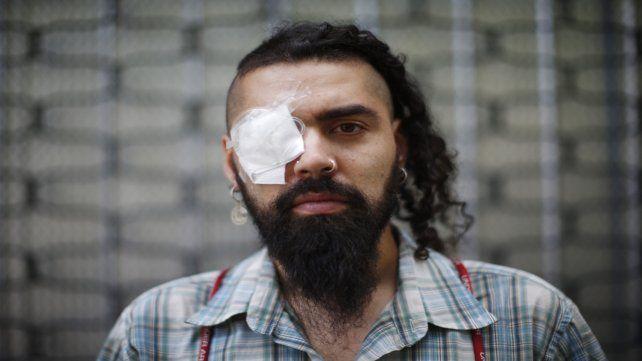 Lesionado. Marcelo Herrera