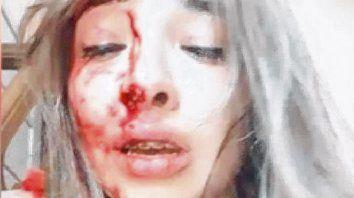 desesperada. Los videos difundidos en las redes sociales muestran a la joven profundamente angustiada.