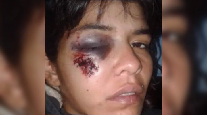 Evelyn sufrió severos daños en la córnea por un piedrazo de unos vecinos que estaban tirando tiros al aire. (Foto: captura de TV)