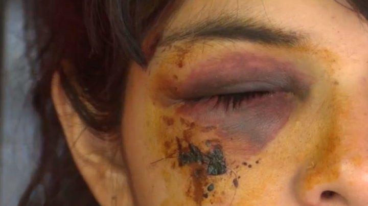 Una mujer se quejó porque estaban tirando tiros al aire y casi le sacan un ojo de un piedrazo