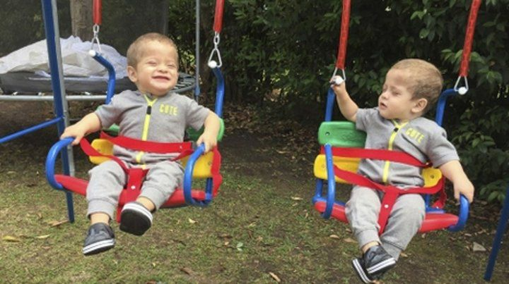afectados. Los bebés sufren el Síndrome de Wiskott-Aldrich.