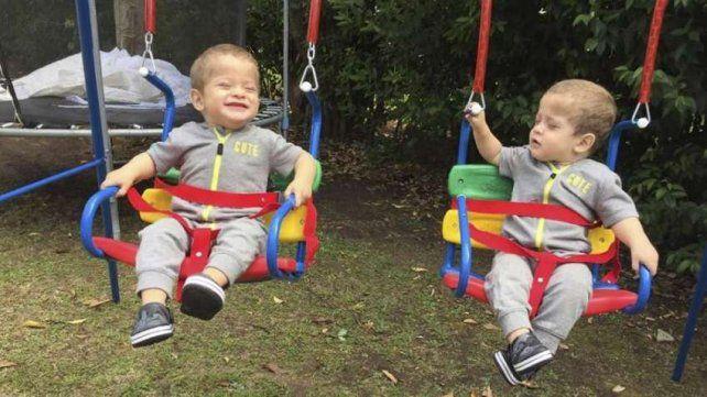 Los gemelos nacieron con este extraño síndrome que sólo se puede combatir con un trasplante de médula ósea.