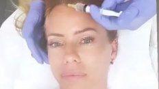 En una historia, Nicole mostró que se sometió a un tratamiento estético.