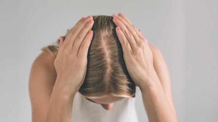 Aumentan los casos de caída de cabello en cuarentena