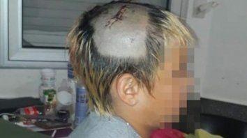 Herido. El menor debió ser operado tras recibir un culatazo en la cabeza.