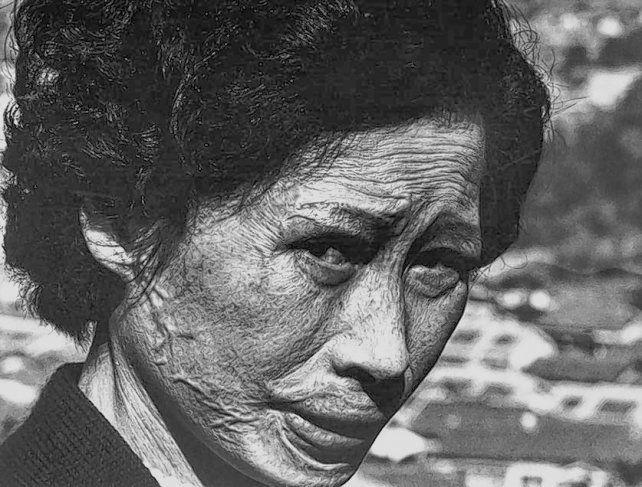 Rostros de Hiroshima, dos imágenes del gran fotógrafo japonés Shomei Tomatsu.
