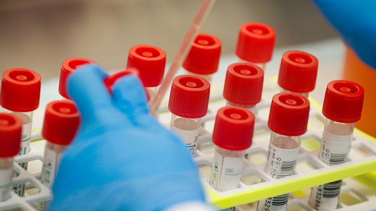 Santa Fe sumó 133 casos de coronavirus, un muerto y superó los 2.000 contagios