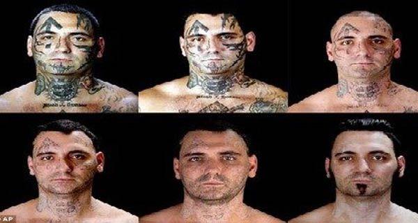 Un racista se sometió a dolorosas cirugías para quitarse los tatuajes