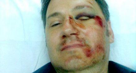 Un estudiante y su madre golpearon ferozmente al director de la escuela